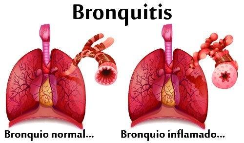 Plantas para la bronquitis