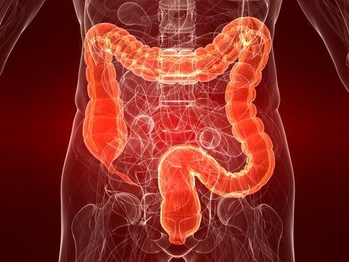 El Síndrome del Intestino Irritable en mujeres