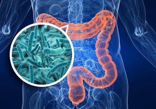 Síndrome de sobrecarga bacteriana en el intestino: síntomas y alimentación