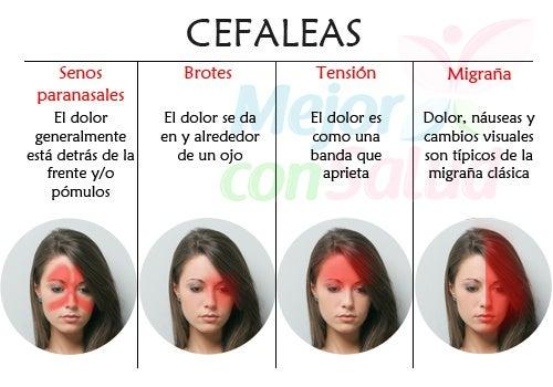Remedios para la cefalea tensional