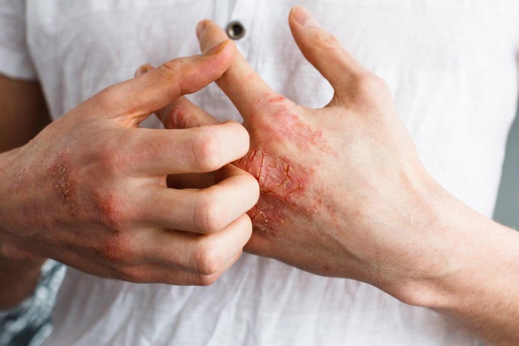 Hombre rascándose la mano con un ezcema severo