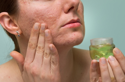 Remedios naturales para reducir las cicatrices
