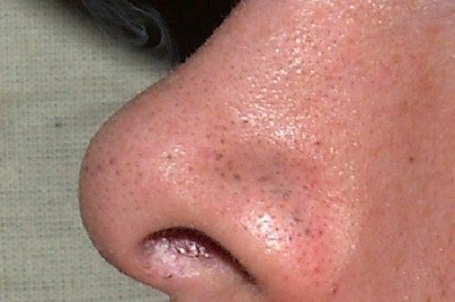 7 tips para eliminar los puntos negros del rostro con rapidez