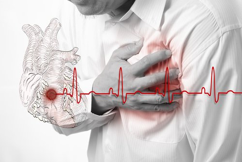 Principales causas del infarto de miocardio