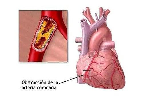 7 hábitos que pueden causar problemas cardiacos