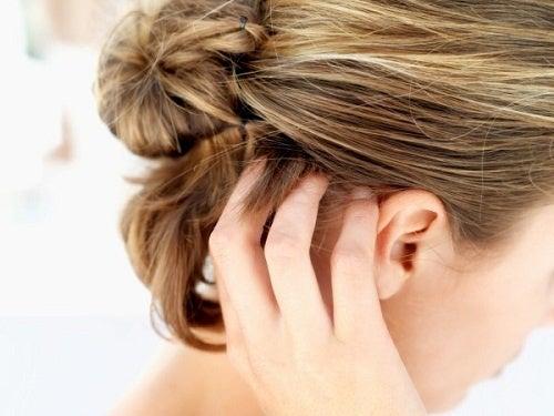 Factores que determinan la aparición de la caspa