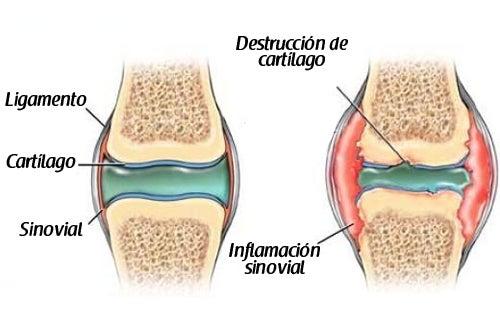 Cómo prevenir el dolor de cartílagos