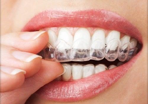 4 técnicas para no rechinar los dientes
