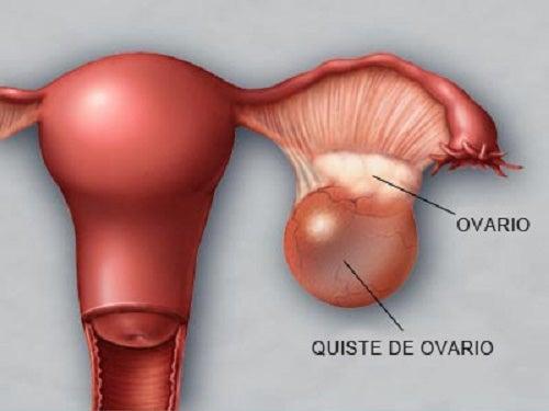 Cómo prevenir y detectar a tiempo los quistes en los ovarios