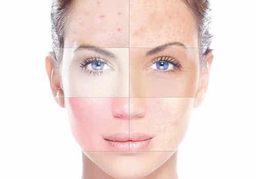 ¿Por qué nuestra piel es seca, mixta o grasa?