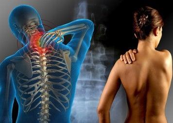 Hierbas para aliviar el dolor de la fibromialgia