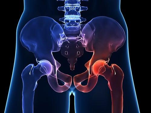 Artrosis de cadera: qué es y cuales son los síntomas