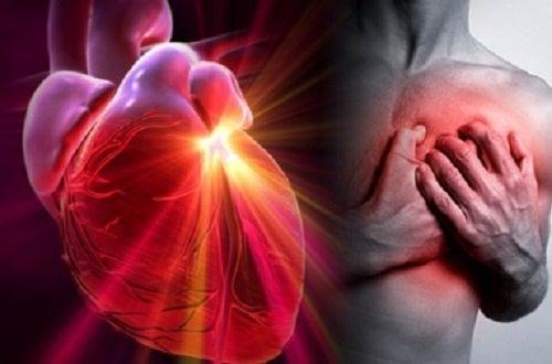 Cómo reconocer las diferencias entre un infarto, un paro cardíaco y un ictus
