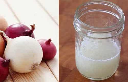 ¿Puede el jugo de cebolla hacer crecer el cabello?