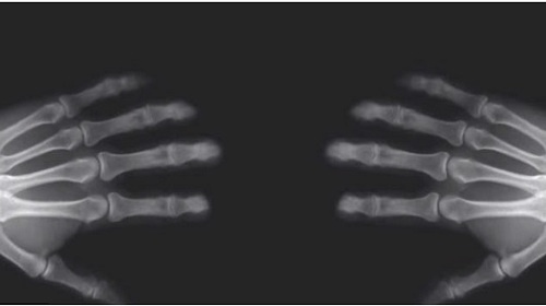 Esto es lo que sucede al crujir los dedos