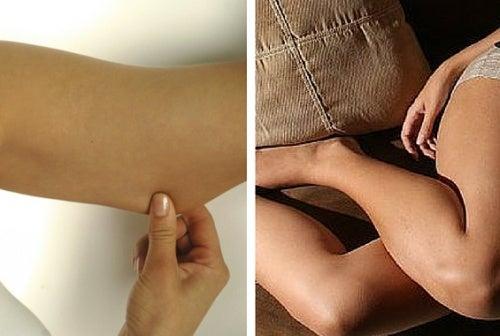 Cómo lograr firmeza en los brazos y piernas