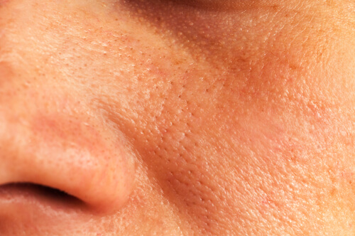 5 soluciones naturales para reducir los poros dilatados de la piel