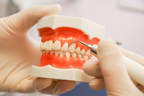 Periodontitis: todo lo que debes saber