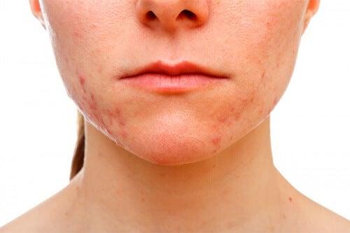Tipos de tratamientos para el acné pápulo-pustuloso