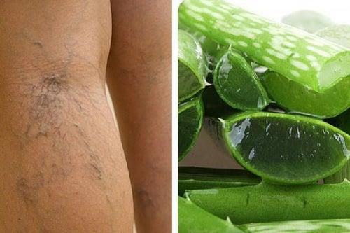 Complemento natural con aloe vera para tratar las úlceras varicosas