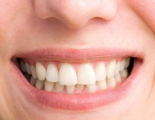 Las mejores claves para conseguir una sonrisa perfecta