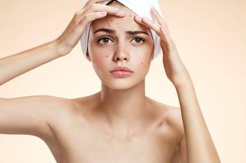 5 remedios caseros para combatir el acné