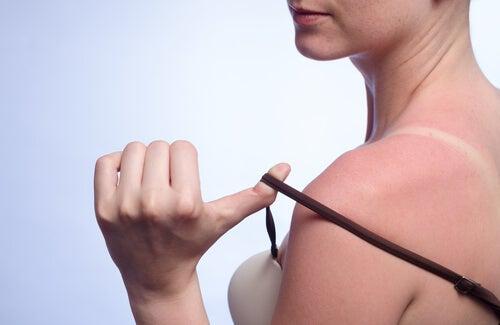 7 remedios naturales para tratar las quemaduras por el sol
