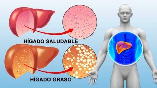 Hígado graso, la enfermedad silenciosa que puede derivar en cáncer