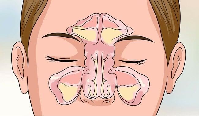 Sinusitis maxilar: síntomas y tratamiento