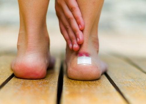6 remedios naturales para deshacerte de las ampollas en los pies