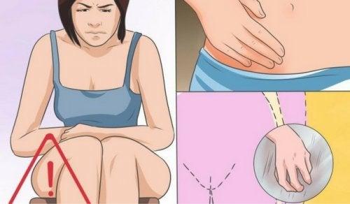 Estas son las causas, síntomas y tratamiento de la candidiasis vaginal