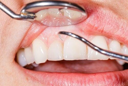 14 razones por las que te sangran las encías al cepillarte los dientes