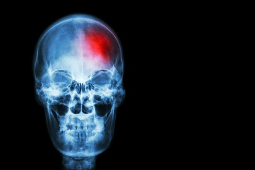Señales que alertan de un derrame cerebral