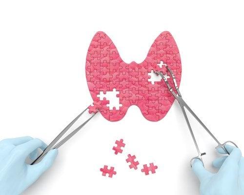 Descubre las señales de problemas de tiroides