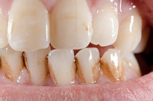 Cómo eliminar el sarro de los dientes naturalmente