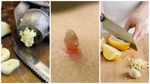 Preparados medicinales para retirar las verrugas de manera natural