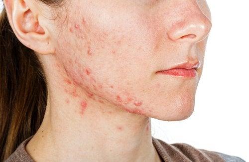 Tratamientos internos para el acné