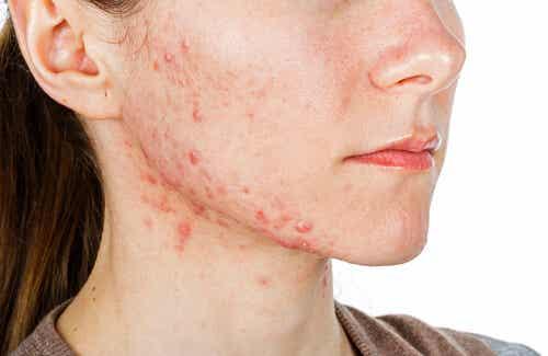 6 pasos para eliminar el acné