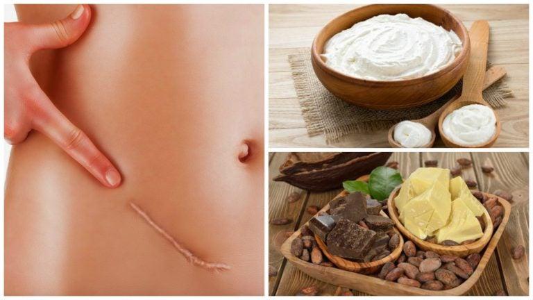 Los 7 mejores remedios para atenuar las cicatrices de forma natural