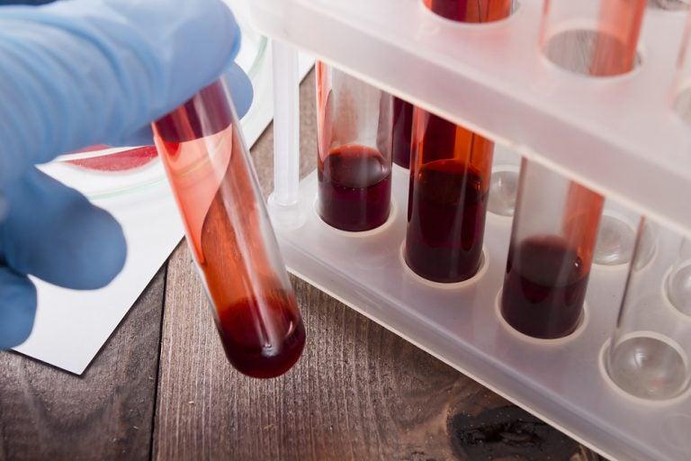 Un análisis de sangre ayuda a detectar un cáncer en su fase inicial
