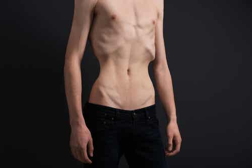 La anorexia, ¿qué factores influyen en su aparición?
