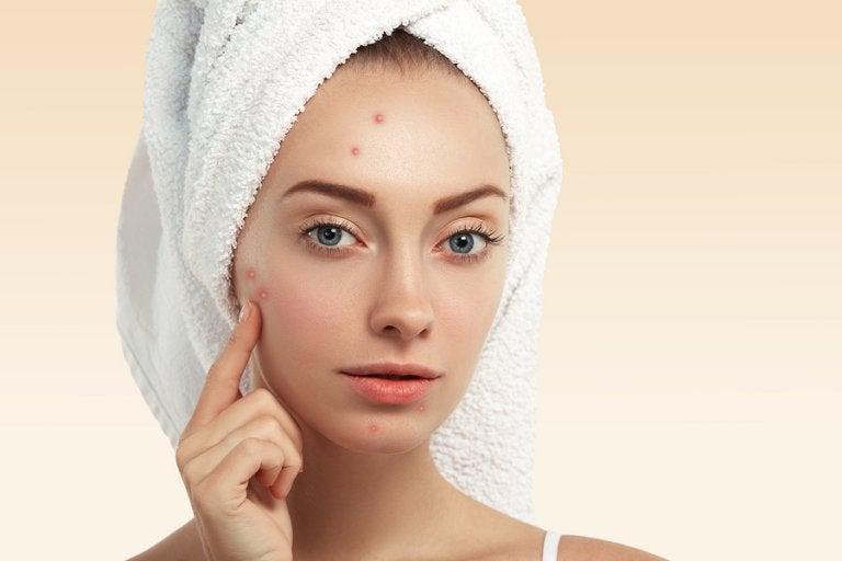 3 remedios naturales para atenuar cicatrices por acné