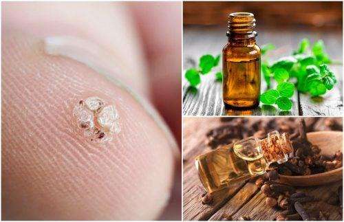 7 aceites esenciales que te ayudarán a eliminar las verrugas