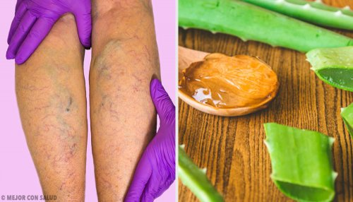 Remedio de aloe vera para las varices