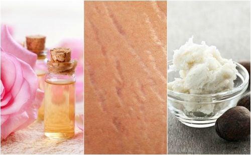 Reduce el aspecto de las estrías con estos 4 tratamientos naturales