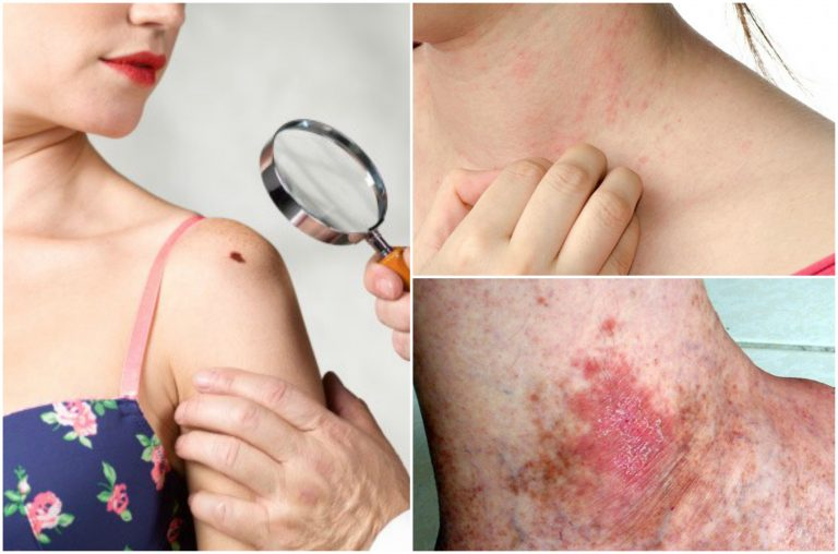 6 síntomas de cáncer de piel que no debes ignorar