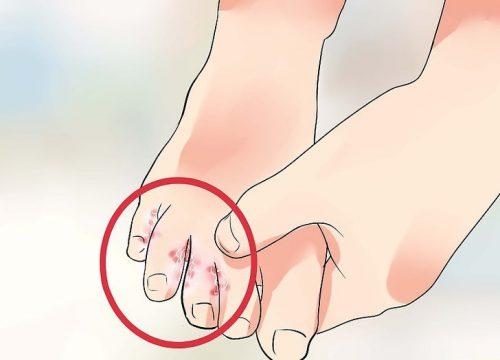 7 remedios caseros y naturales para tratar el pie de atleta