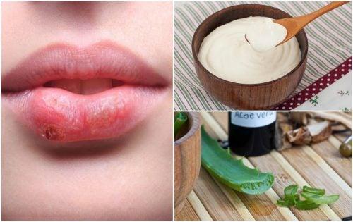 7 tratamientos de origen natural para combatir el herpes labial