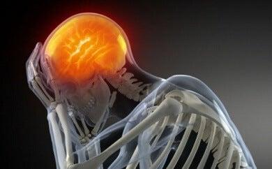 10 remedios caseros que calman el dolor de cabeza
