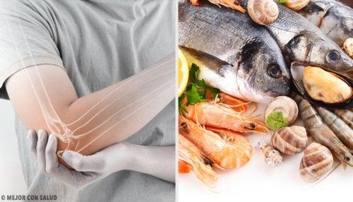 ¿Comer pescado genera menos dolor por artritis reumatoide?